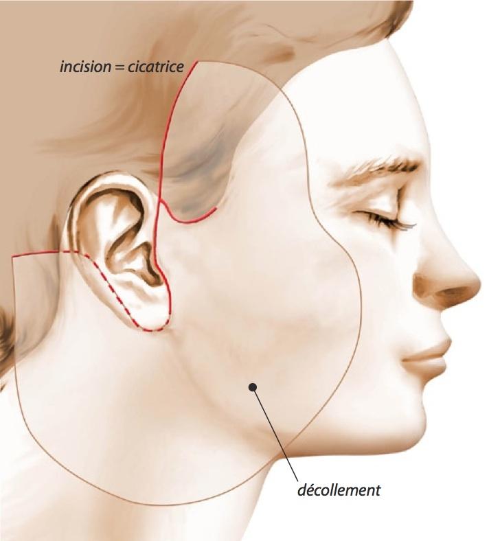 Insisions lifting facial