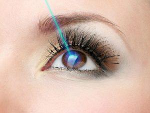 chirurgie-yeux-au-laser