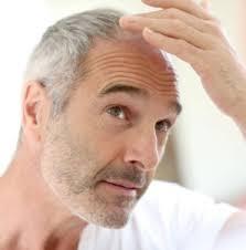 prp-cheveux