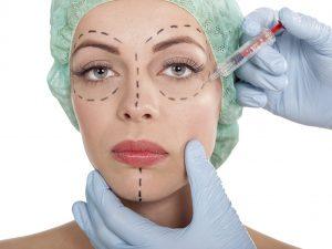 chirurgie-des-paupieres