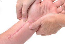 traitement-cicatrices