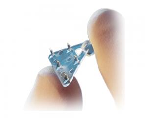 implant endotine